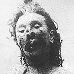 Mortuary photo of Catherine Eddowes
